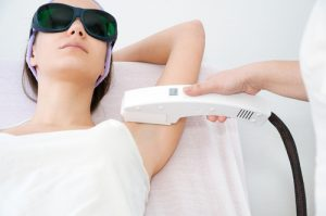 removing hair with laser. shutterstock