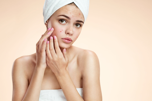 acne treatment. shutterstock